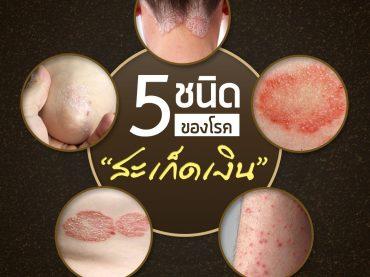 5-ชนิดของโรคสะเก็ดเงิน